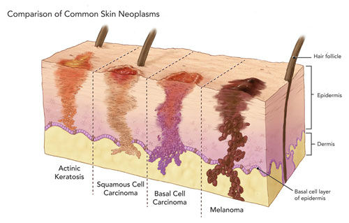 Skin Cancers You May Not Now About Comprehensive Cancer Centers